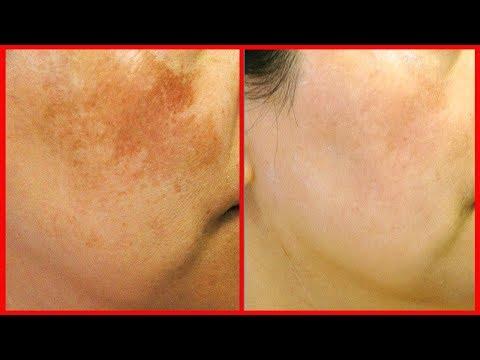 Lemon & Coriander to Remove Dark Spots, Acne Scars, Skin Pigmentation Easily At Home