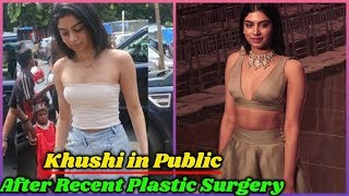 Khushi Kapoor First Time in Public After Recent Plastic Surgery