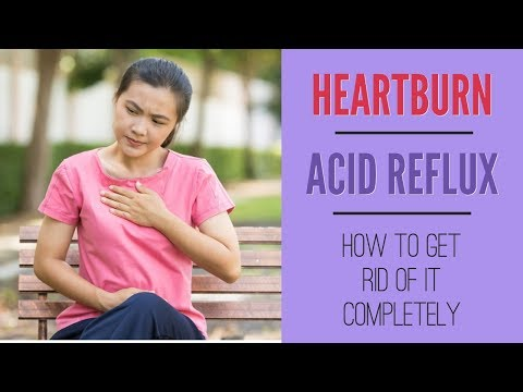 How To Get Rid of Heartburn and Acid Reflux | GERD Treatment