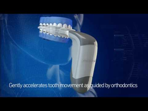 How to straighten your teeth faster with Acceldent at Seidner Dentistry