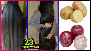 How To Grow Long and Thicken Hair Faster With Onion & Potato !! Super Fast Hair Growth Challenge!