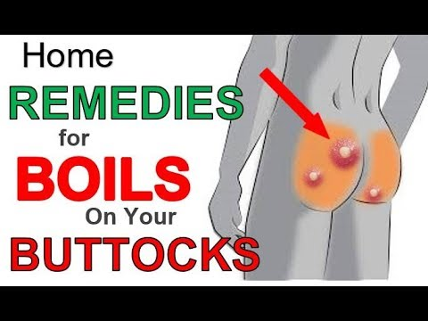 The 3 Most Effective Home REMEDIES for BOILS on BUTTOCKS | Boils BUTTOCKS Treatment for Fast Relief