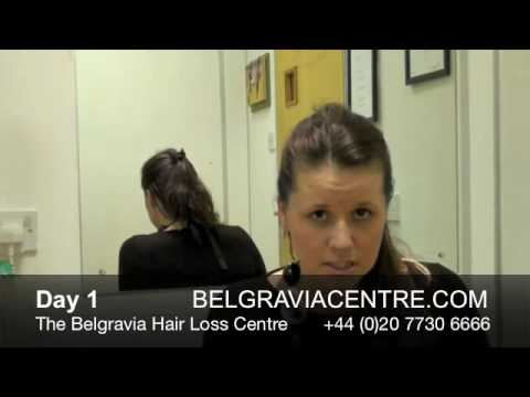Hair Loss After Pregnancy - Video Diary Month 1