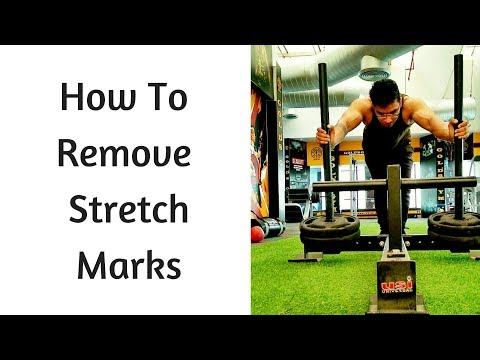 How To Remove Stretch Marks | Tips To Reduce Stretch Marks | Quick Way To Remove Stretch Marks