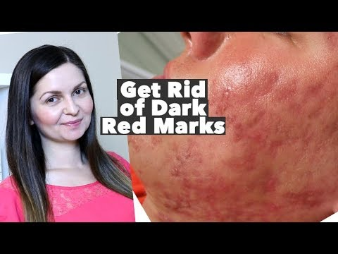 How to Get Rid of Red Acne Marks – Hyperpigmentation  Post Inflammatory Erythema – PIE vs PIH