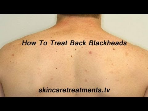 How To Treat Blackheads on the Back