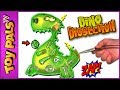 DINO DISSECTION Dinosaur Game Dinosaur Dig Bones Operation Game For Kids