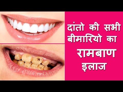 दांतो की सभी बीमारियो का रामबाण इलाज - One Unique Solution for All Dental Problems - Healthy Teeth