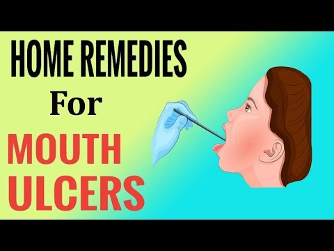 Painful Mouth Ulcers Home Remedies -  Get Rid Of Your Mouth Ulcer Naturally