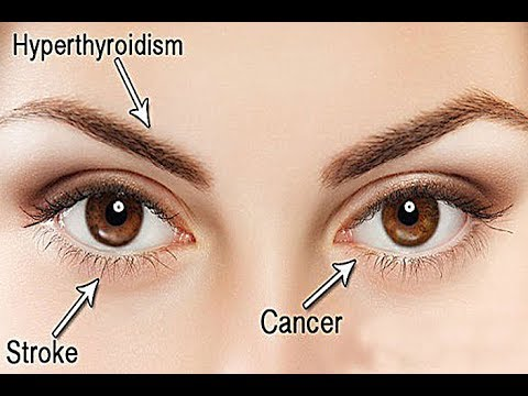 What Your Eyes Are Trying To Reveal About Your Health!