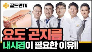 【비정상토크】 요도곤지름(콘딜로마), 내시경 검사 및 제거가 필요한 이유!!