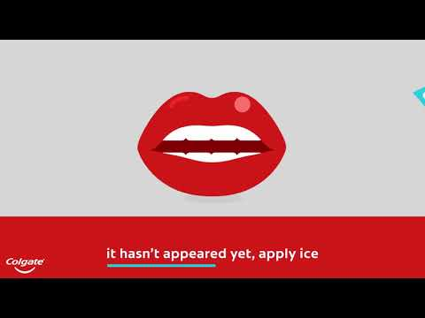 Cold Sore – How to Get Rid of Them | Colgate®