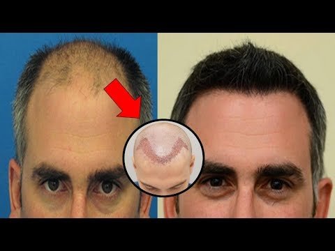 Are Hair Transplants Really Scar-less ? -  You Concept Will Clear after Watching this Video