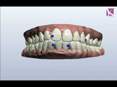 Treatment without braces-3D SIMULATION FOR CORRECTION OF BUCK TEETH
