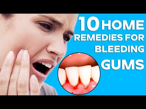Top 10 Home Remedies to Heal Bleeding Gums  || Health & Beauty