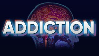 The Science of Addiction and The Brain