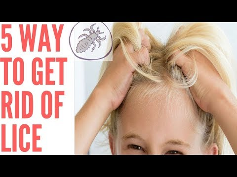 5 way to Get Ride Of lice 🐞