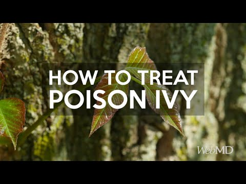 How to Treat Poison Ivy | WebMD