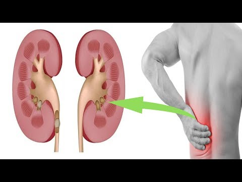 Early Symptoms of Kidney stone, That may Help you to Diagnose the Kidney Stone