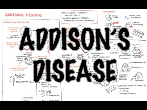 Addison's Disease - (DETAILED) Overview