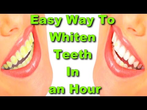 easy way to whiten teeth in an Hour