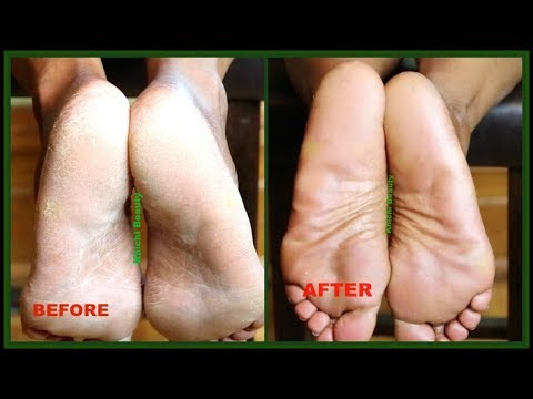 WOW! This Is Amazing! I MIXED VASELINE WITH 3 OILS AND LOOK WHAT IT DID TO MY FEET  Khichi Beauty
