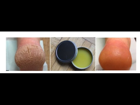 DIY Foot Ointment. Make your Own Ointment For Dry Cracked Heels.Cure your for Dry Cracked Heels.