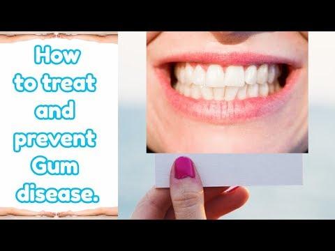 Gum disease, Remedies used to treat and prevent Gum disease.