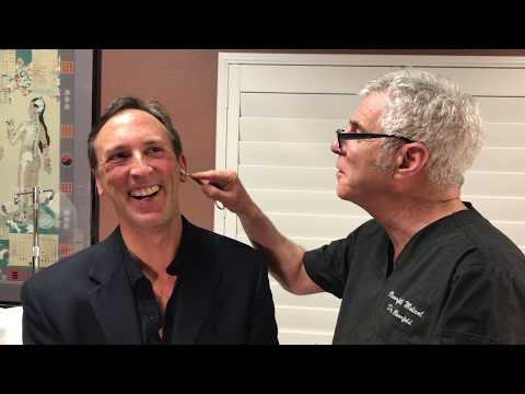 Reno Doctor and Reno Acupuncture | Battlefield Acupuncture to Relieve Tinnitus (90% better)