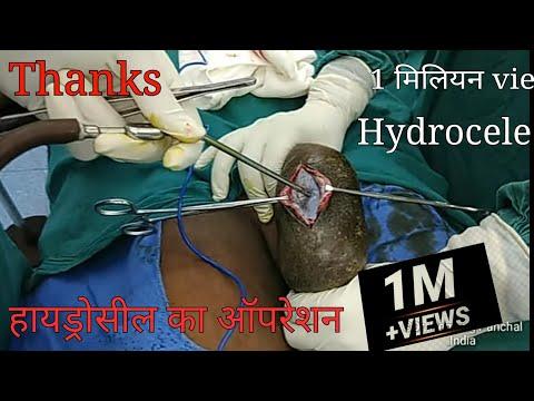 Xxx Mp4 Hydrocele हाइड्रोसिल Surgery Jaboulay 39 S Eversion 3gp Sex