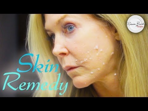 Wrinkle Remedy and Age Spots Removal |  Bleach Your Skin Anywhere