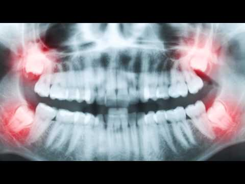 Impacted Teeth | Abnormalities in Tooth Quantity- 2