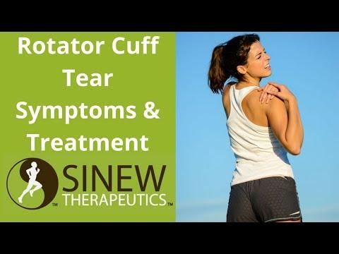 Rotator Cuff Tear Symptoms and Treatment