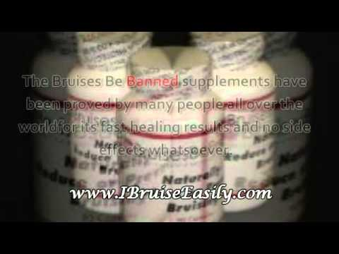Common Reasons For Easy Bruising And The Best Supplement Program For Stopping This Condition.