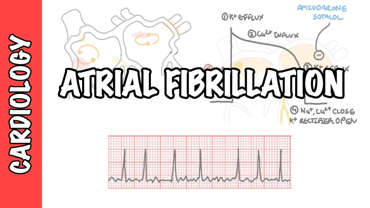 Atrial Fibrillation Overview - ECG, types, pathophysiology, treatment, complications