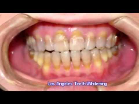 Los Angeles Teeth Whitening 8-19-11