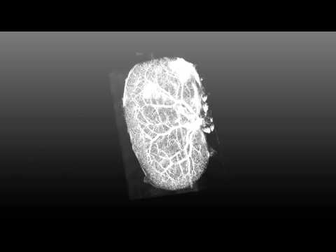 Kidney Vasculature in 3D