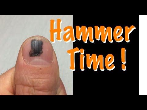 Smashed nail with hammer - time lapse - Black spot under fingernail