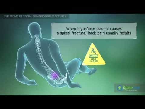 Spinal Compression Fractures Symptoms