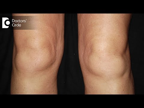 What are the causes of swelling in knees? - Dr.Nagesh HS