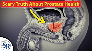 🤾♂️ The REAL Cause & Cure For Prostate Cancer
