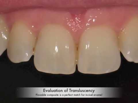 Restoration of enamel chip, using intra-oral sandblasting and flowable composite.