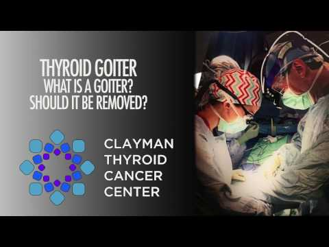 Thyroid Goiter: What Is It? Should It Be Removed?