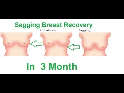 How To Prevent Or Save Your Breasts From Sagging