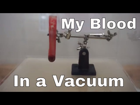 What Happens When I Put My Own Blood In A Vacuum Chamber? Will It Boil Or Turn Blue?