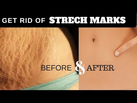Get Rid of Stretch Marks Fast - Natural Home Remedies for Stretch Marks GUARANTEED to Work! √