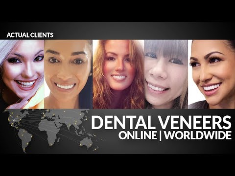 Dental Veneers -Smile Makeover -No Cosmetic Dentist -World Wide by Brighter Image Lab!