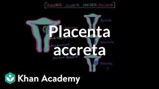 Placenta accreta |  Reproductive system physiology | NCLEX-RN | Khan Academy