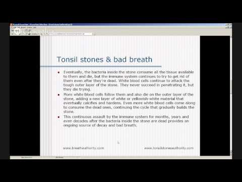 Bad Breath Tonsil Stones - Tonsil Stones Causes - Prevent Tonsil Stones