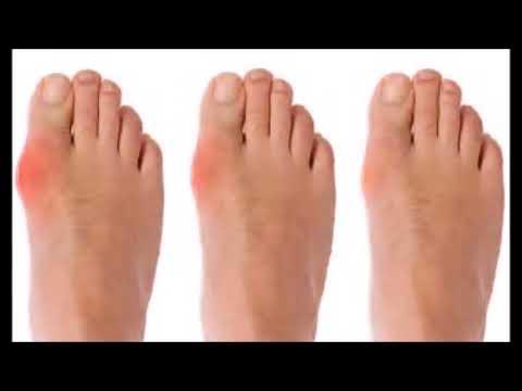 Diet To Prevent Gout Symptoms